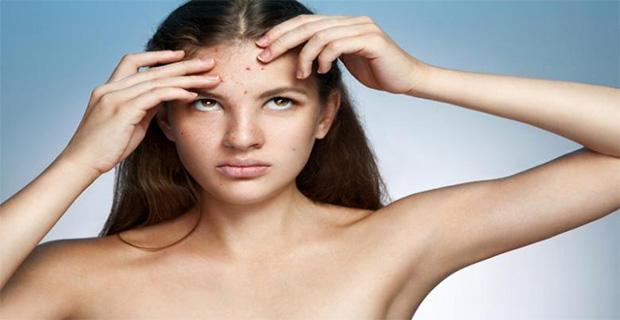 Skincare terbaik kulit berjerawat