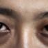 Inilah Penyebab Kenapa Muncul Lingkaran Gelap Yang Ada di Bawah Mata