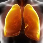 Inilah Alasan Kenapa Orang Yang Bukan Perokok Juga Bisa Terkena Kanker Paru-paru