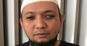 Novel Tunggu Operasi Lanjutan Setelah Jahitan di Mata Kirinya Dibuka